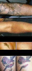 laser tattoo removal Albuquerque