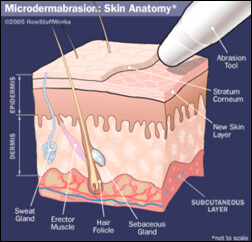 Quality Microdermabrasion Albuquerque | Laser Skin Care