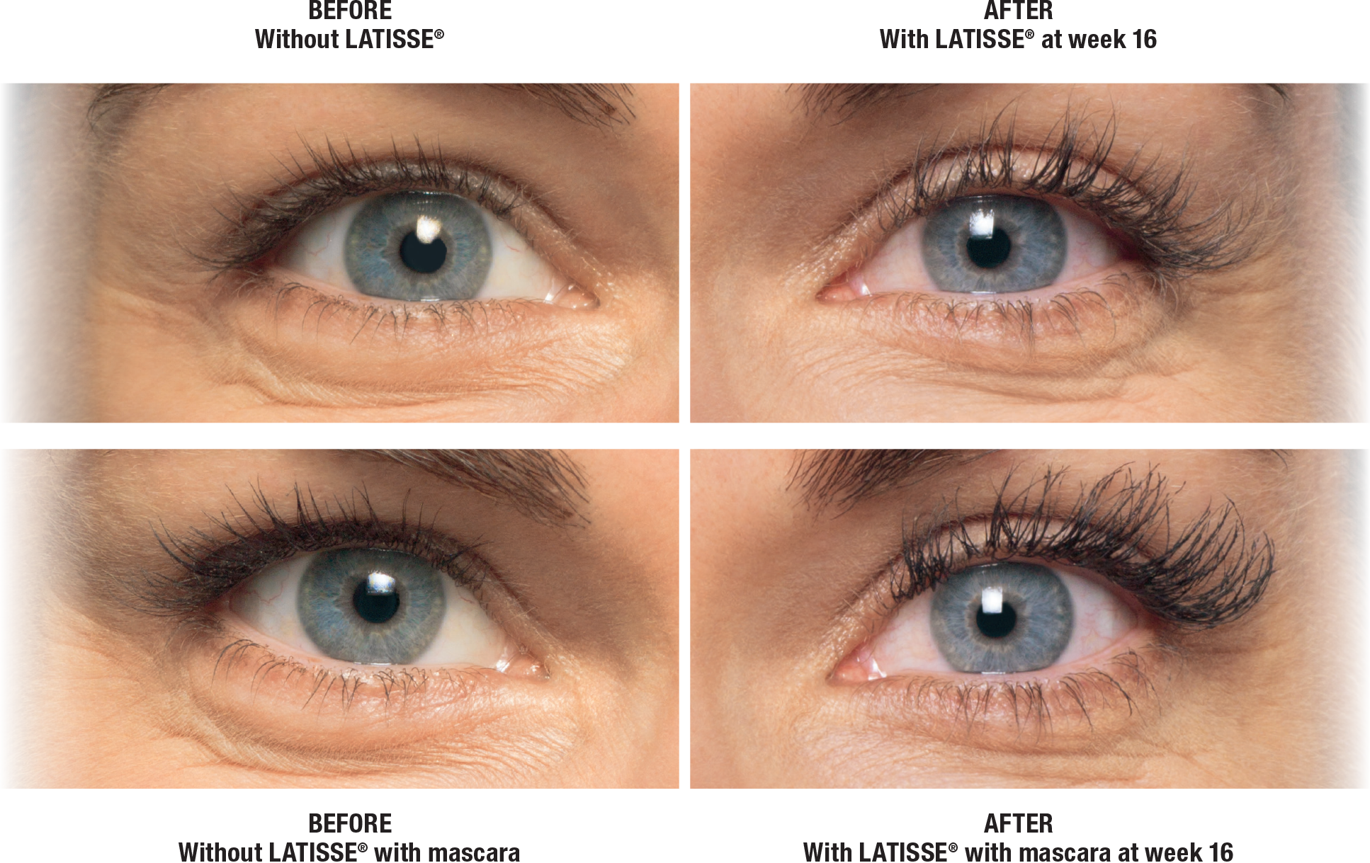 f90b1e63183 Let Belleza Med Spa double your lash fullness in just 16 weeks! Latisse  solution is a prescription medication approved by the FDA for the treatment  ...