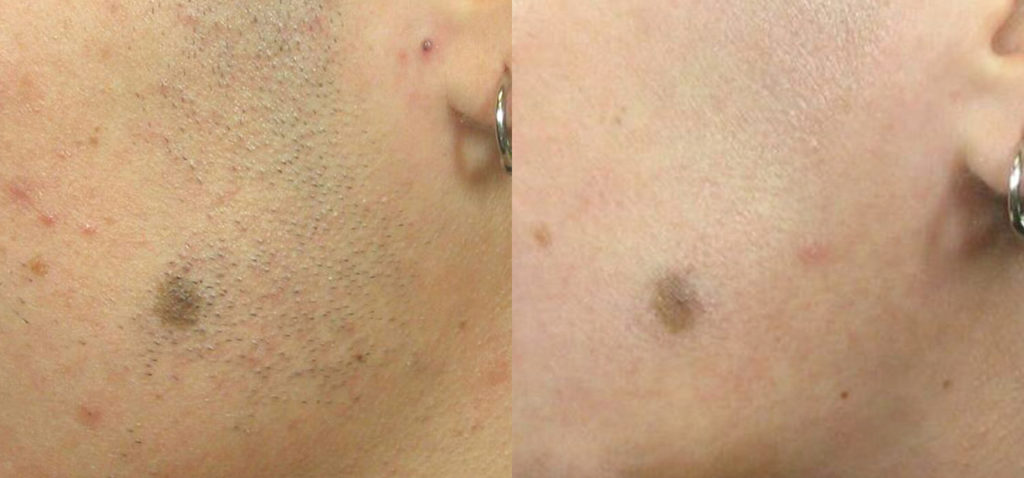 Albuquerque Laser Hair Removal